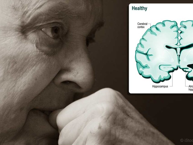 Alzheimer's Deaths Exceed Half a Million a Year in the US