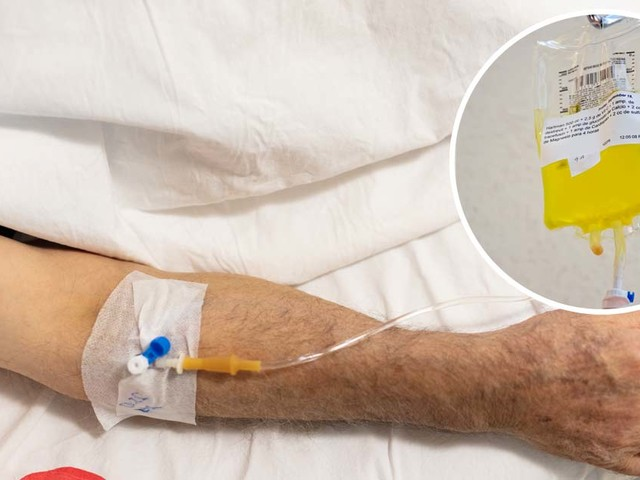 Vitamin C Lowers Mortality in Severe Sepsis