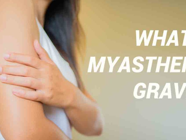 Introduction to myasthenia gravis — A rare, neurological autoimmune disease