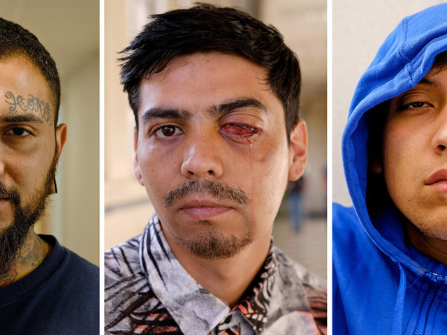A Bullet to the Eye Is the Price of Protesting in Chile
