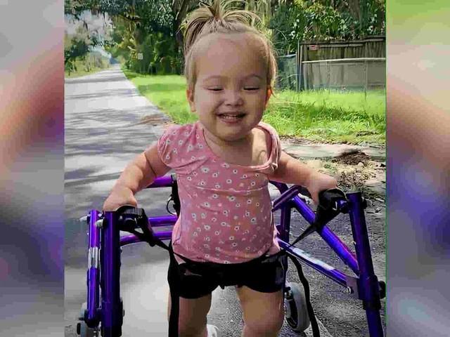 Little girl overcomes all odds to walk