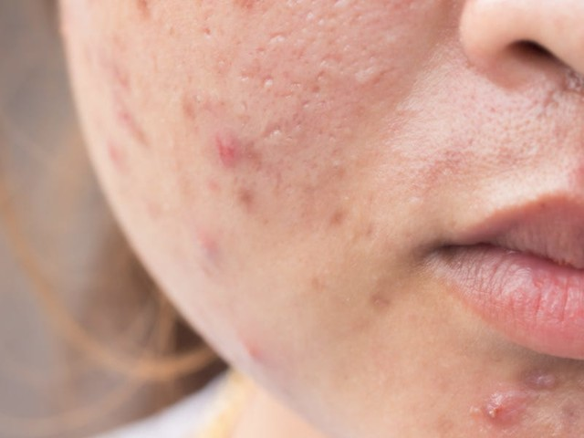 Yes, pregnancy can cause acne. Here's when you will breakout the worst and how to treat it