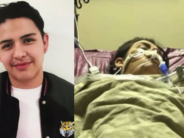 NorCal Teen Hospitalized With Botulism After Eating Gas Station Nacho Cheese Linked to Outbreak
