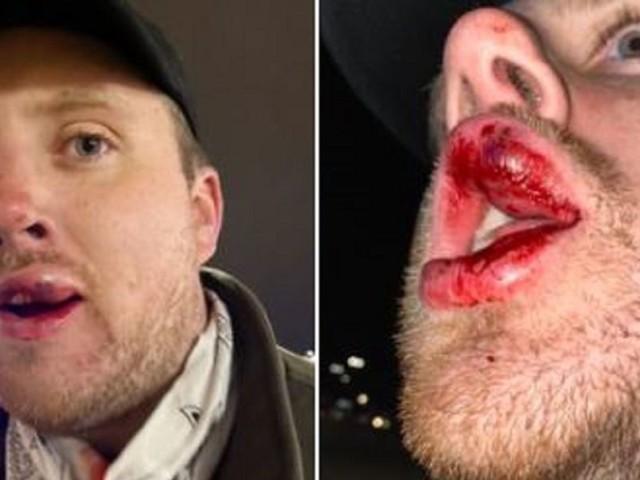 BlazeTV reporter beaten while filming the looting inside Philadelphia store