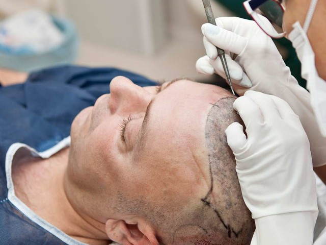 Medical News Today: How effective are different hair transplant methods?