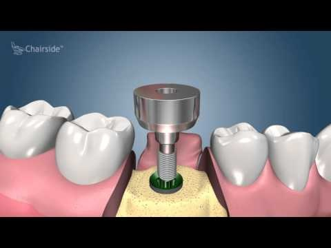 Dental Implants | Types, Procedure, Recovery, & Aftercare