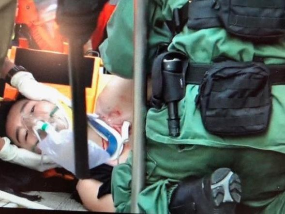 Hong Kong Protester Shot In Chest During National Day Demonstrations