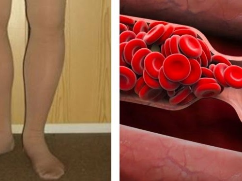 If You Have These Symptoms, It Is Very Likely That You Have A Blood Clot (It Can Cause A Heart Attack!)