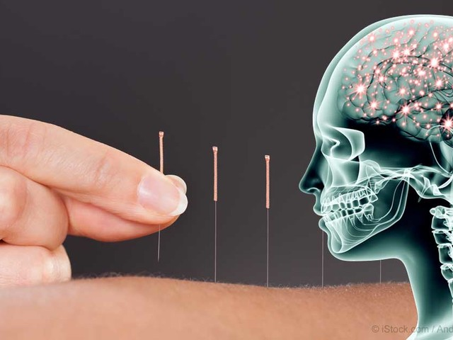 Study Reveals Previously Unknown Mechanism Behind Acupuncture's Ability to Reduce Pain