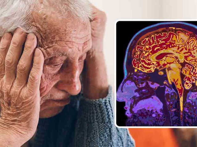 Case study reveals how cognitive decline can be reversed