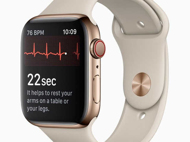 AliveCor Seeks To Ban The Apple Watch Over ECG Feature