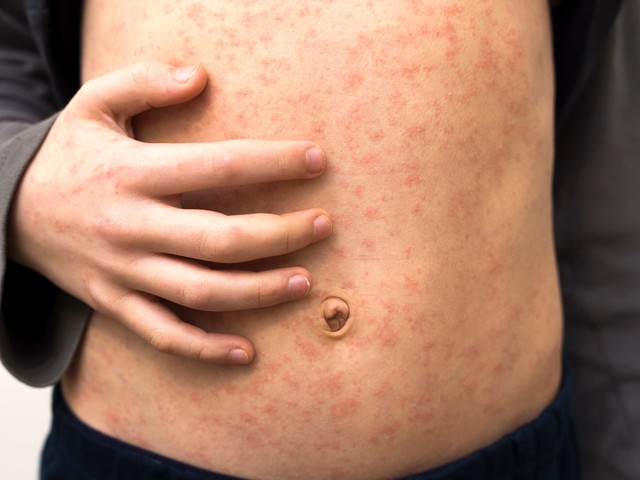 Measles outbreak in Georgia linked to family of 5: state health officials