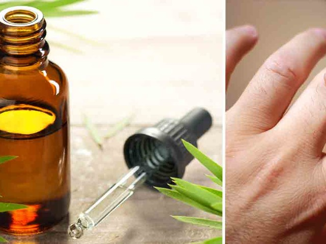 Tea Tree Oil for Warts and Cold Sores