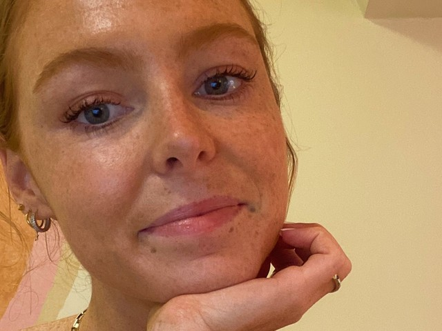 A Facialist Gave Me This Advice To Delay Forehead Botox