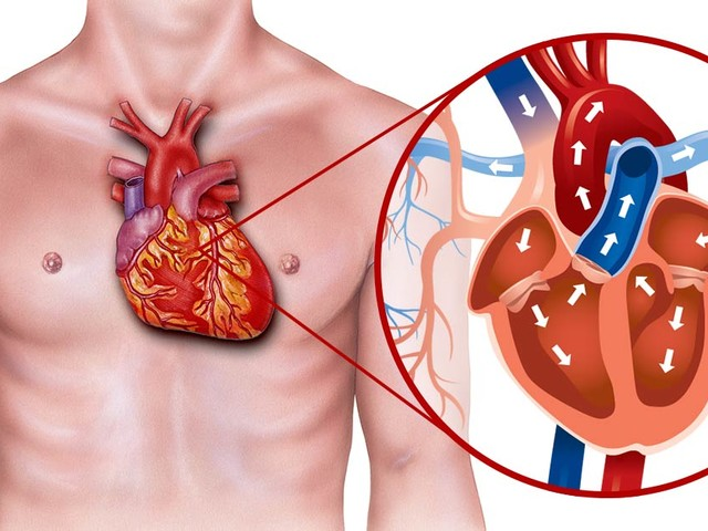What You Really Need to Know About Heart Disease and Its Treatment