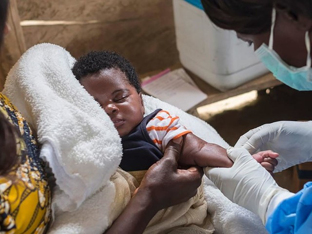 Measles twice as deadly as Ebola in DRC