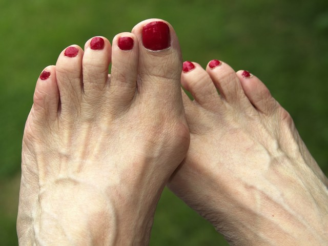 The Best Methods for Treating Your Bunion Pain