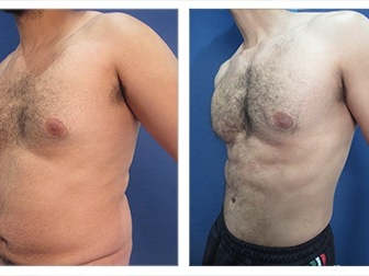 Male liposuction of the Abdomen - Cosmetic Plastic Surgery Institute