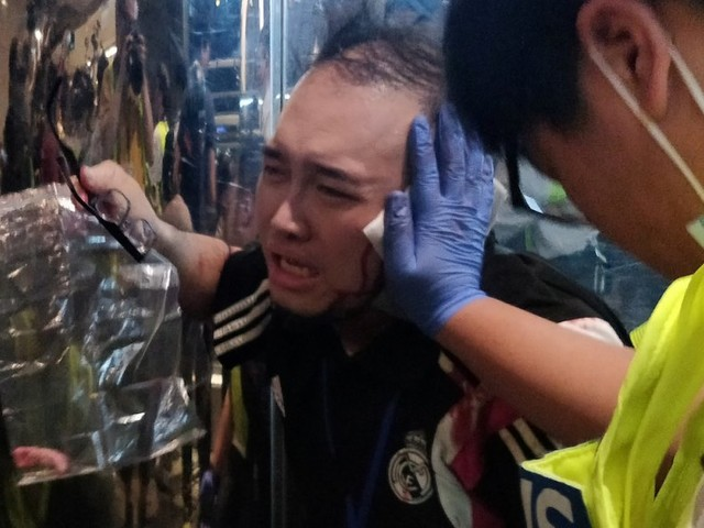 Attacker bit off local politician's ear at Hong Kong protests that descended into chaos
