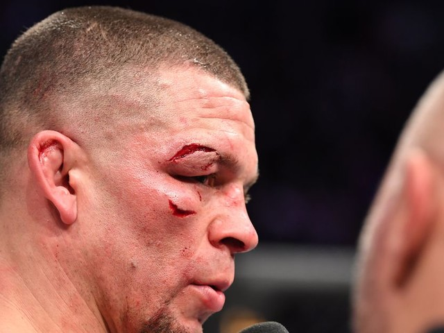 Diaz wants Masvidal rematch but sees UFC 'f—kery coming'