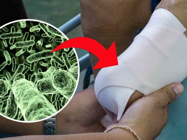 Flesh eating bacteria attacks those with excess iron