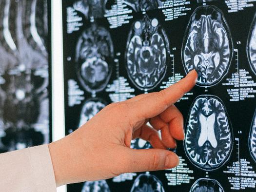 How Partisan Politics Rots Your Brain