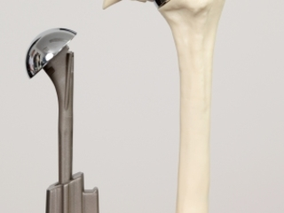 Shoulder Prosthesis: Shoulder Replacement or Shoulder Arthroplasty