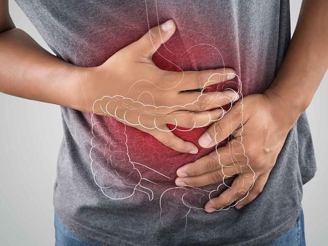 Do FODMAP Foods Trigger IBS Symptoms?