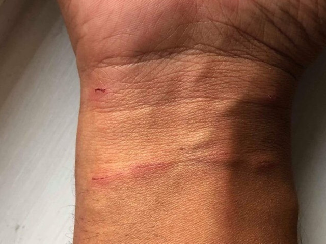 Man Billed $2,300 For Walking Into Emergency Room For Cat Scratch
