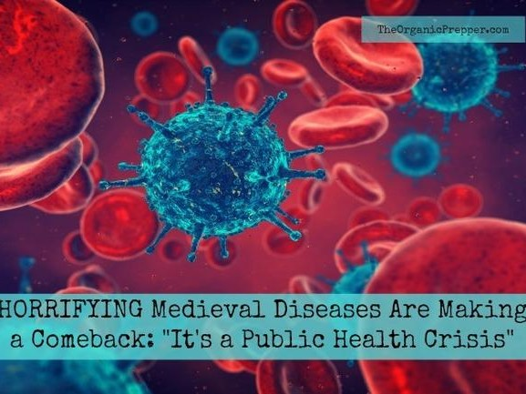 "Medieval Diseases Are Making A Comeback: ""It's A Public Health Crisis"""