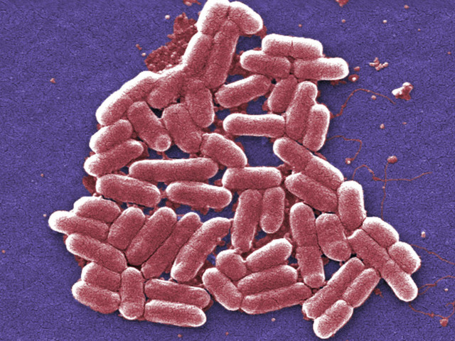 New Technology Can Identify Bacteria's Genetic Make-Up, Fight Drug Resistance
