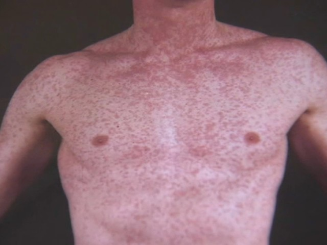 Los Angeles County health officials warn of possible measles exposure at CVS, Ralphs