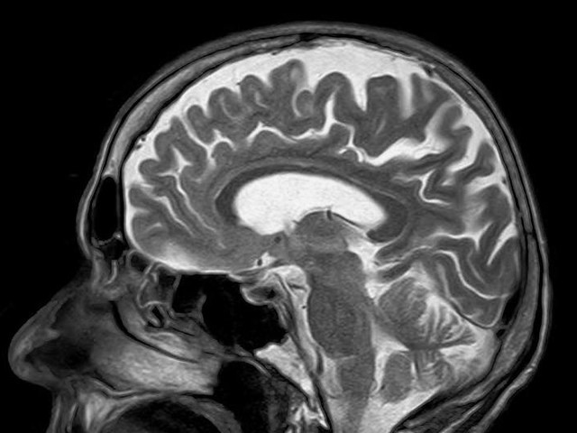 Black, Hispanic people have better outcomes after 'bleeding' stroke
