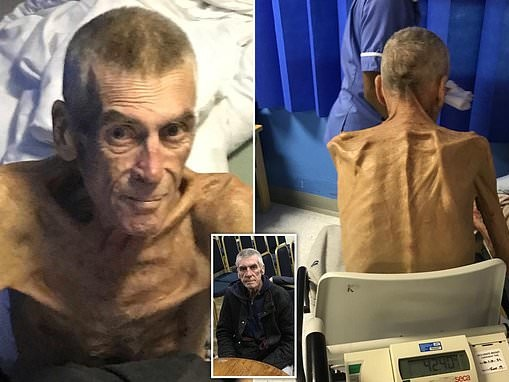 Six-stone emaciated man, 64, left starving and unable to stand but deemed 'fit to find work' DIES