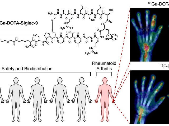 New radiotracer safe and effective for imaging early rheumatoid arthritis