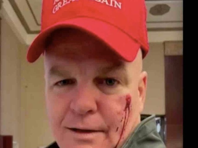 Retired NYPD officer says woman punched him in face, left it bloody on his birthday over red cap that looks like MAGA hat