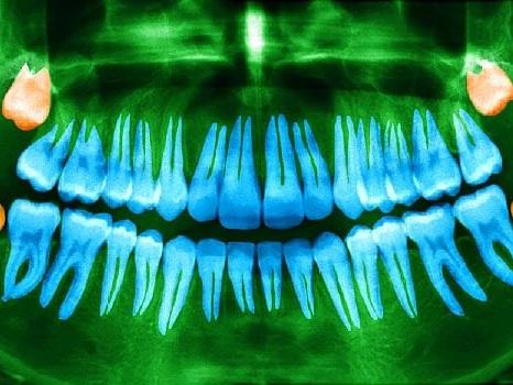 Pulling Wisdom Teeth Has Surprising Benefit: Better Taste