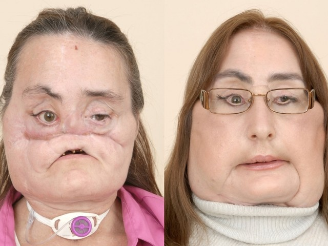 Face transplant recipient Connie Culp dead at 57