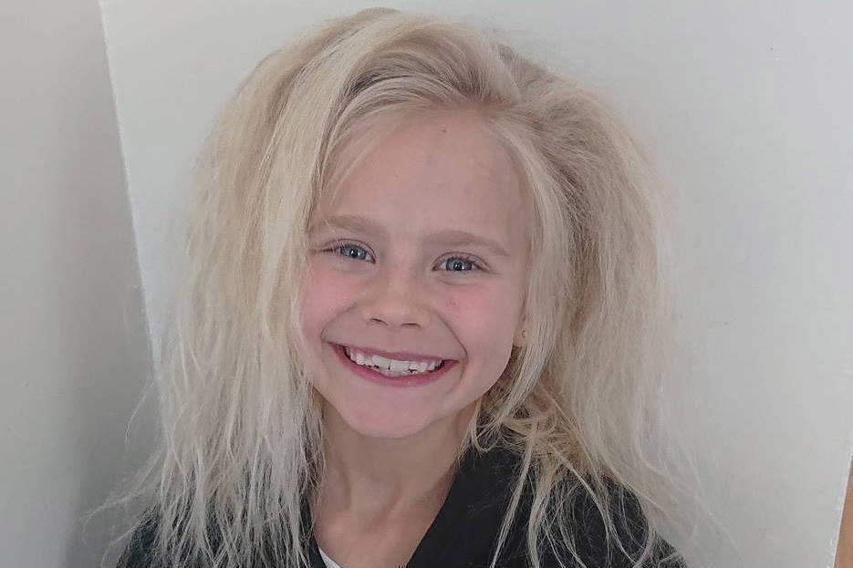 La bambina con la chioma da troll: a causa di una rara sindrome i suoi capelli sono impettinabili