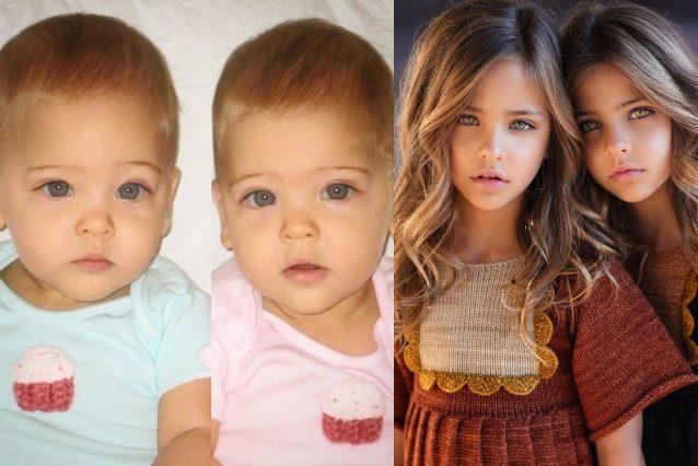 Ava e Leah, le ex gemelle più belle del mondo sono cresciute: ecco come sono diventate