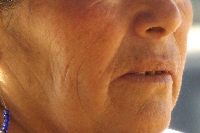 """A 80 anni rischia la vita pur di sembrare giovane: """"Almeno sarò bella nella bara"""""""