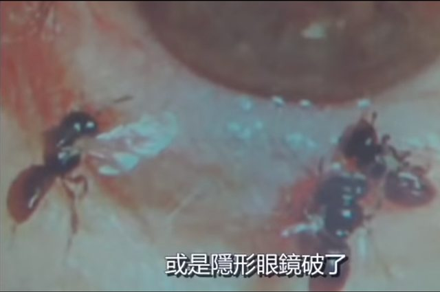 """Quattro api del sudore trovate nell'occhio di una donna. Il medico: """"bevevano le lacrime"""""""