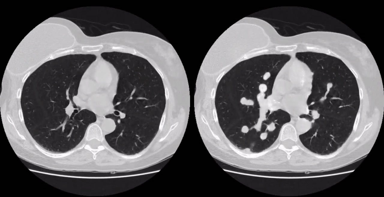 Questo malware può far apparire tumori maligni in TAC e risonanze magnetiche