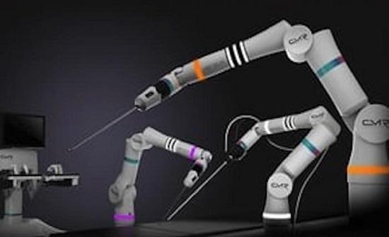 نظام الجراحة الروبوتية فرسيوس يجري ألف عملية ناجحة في أوروبا