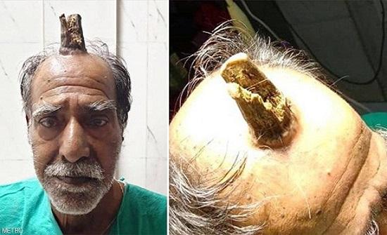 """ظهور """"قرن"""" في رأس رجل هندي بطول 10 سنتيمترات"""
