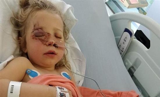 لندن : نزهة تتحول لحادث أليم.. حصان يدمر وجه وجمجمة طفلة بـ ركلة واحدة