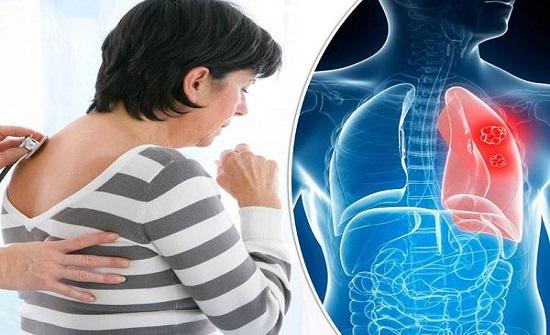 العلماء يتعرفون إلى سبب الالتهاب الرئوي لمرضى كورونا