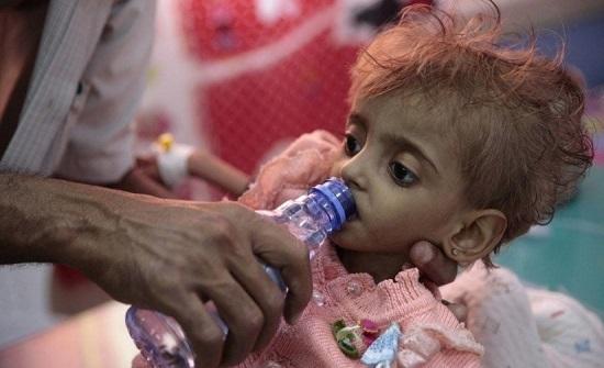 الأمم المتحدة: سوء تغذية الأطفال يصل لأعلى مستويات الخطورة في اليمن