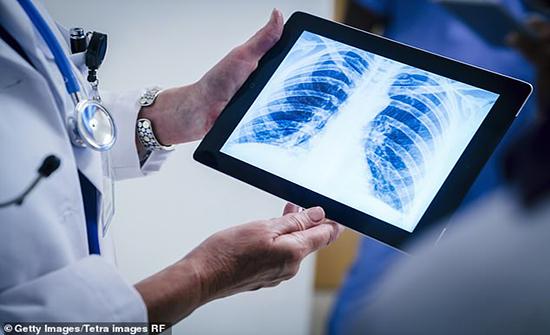 غوغل تلغي مشروعاً يتضمن نشر نتائج فحوص بالأشعة السينية لآلاف الأشخاص