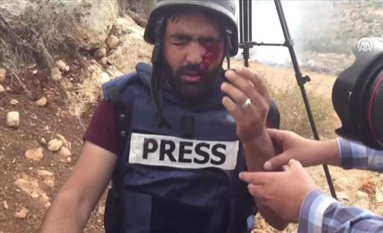 رصاصة إسرائيلية بعين مصور فلسطيني.. حتى لا ترى كاميرته الانتهاكات